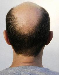 balding man sues1 गंजेपन के चकत्ते (Alopecia or Patchy Baldness) ठीक हो सकते हैं
