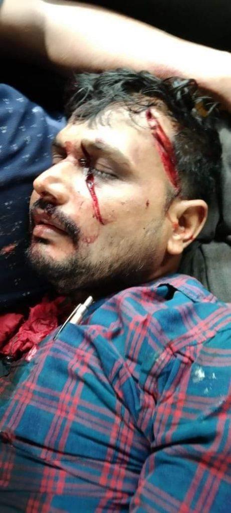 anij kaunjiya3 जाति बड़ी धर्म छोटा है,यह भूल गये थे मानसिक स्वर्ण धोबी अनिश कनौजिया, पुलिस को बड़ी सफलता मिली है, पुलिस ने 17 नामजद और पांच आरोपियों में से चार को गिरफ्तार किया है